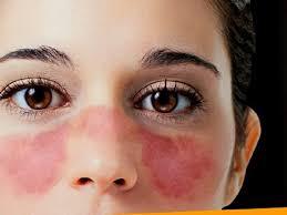Lupus. Tratamiento y efectos secundarios.