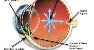 Glaucoma: La enfermedad del siglo XXI