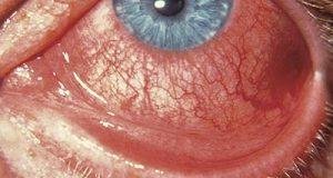Conjuntivitis: ¿Qué es el ojo rojo?